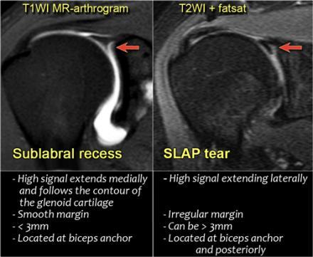 Анатомия плечевого сустава при мрт