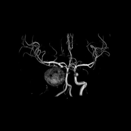 Гигантская мешотчатая аневризма правой внутренней сонной артерии