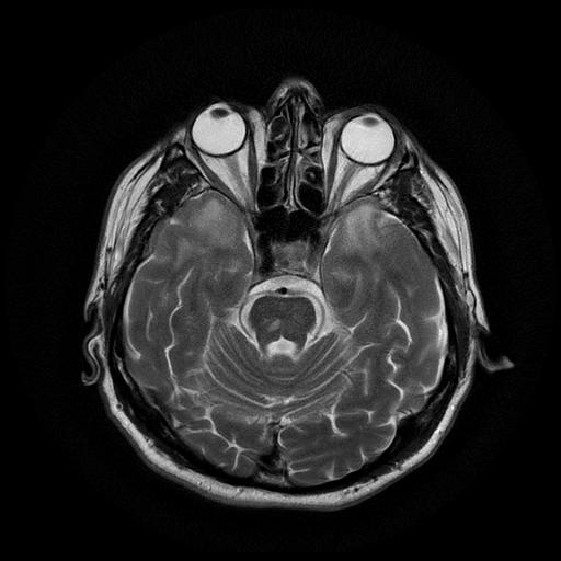 Церебральная аутосомно-доминантная артериопатия с субкортикальными инфарктами и лейкоэнцефалопатией (ЦАДАСИЛ)