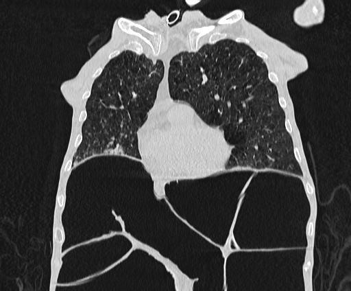 Пневмония, синдром Огилви (толстокишечная псевдообструкция)