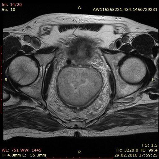 Первичная лимфома прямой кишки