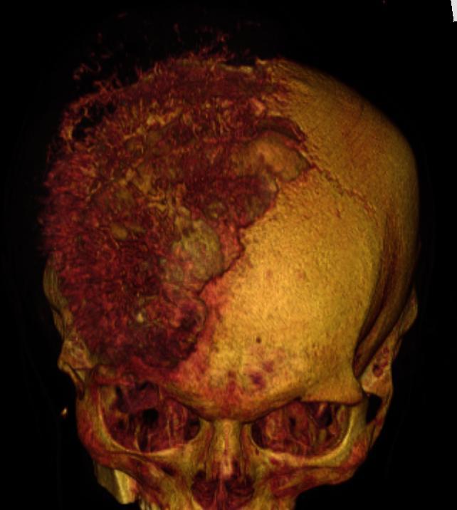 Остеосаркома* свода черепа
