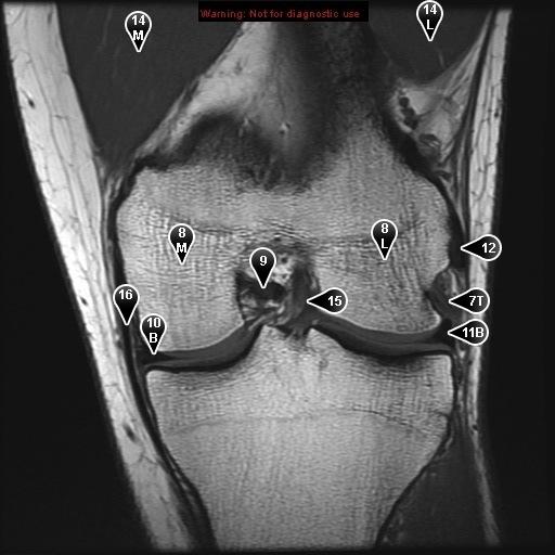 Коленный сустав (нормальная анатомия во фронтальной проекции).