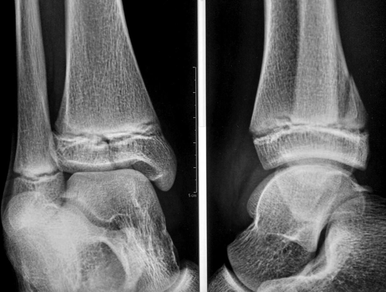Переходный (трёхплоскостной) перелом большеберцовой кости (Triplane fracture).