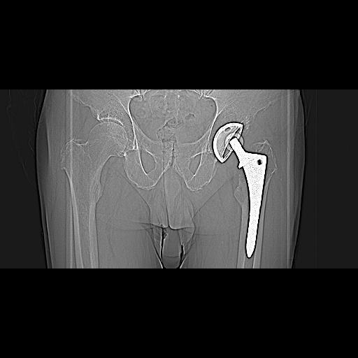 Полиэтиленоз после протезирования тазобедренного сустава.