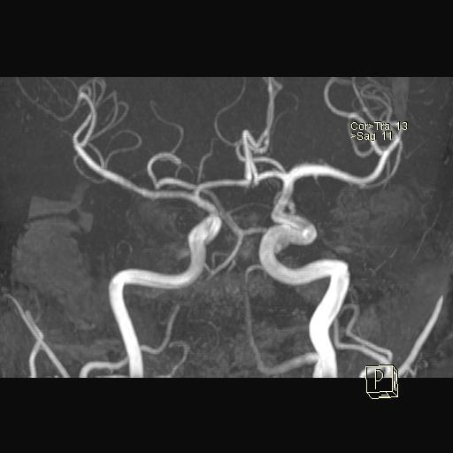 Персистирующая тригеминальная артерия. Фетальный тип строения правой задней мозговой артерии.