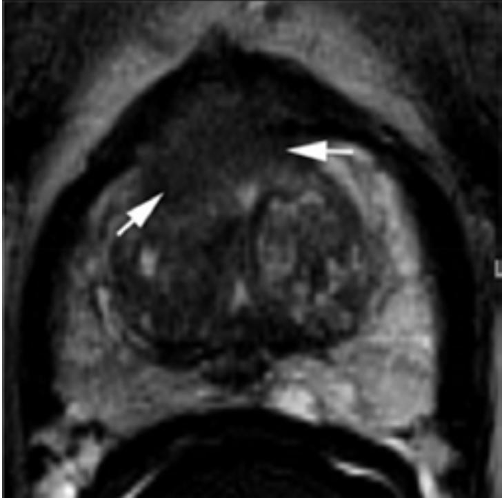 Система оценки данных и составления заключения при визуализации рака предстательной железы PI-RADS 2.0