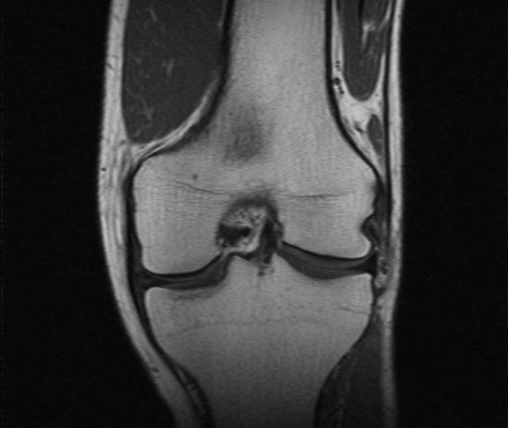 Добавочная подошвенная мышца (Accessory plantaris muscle)