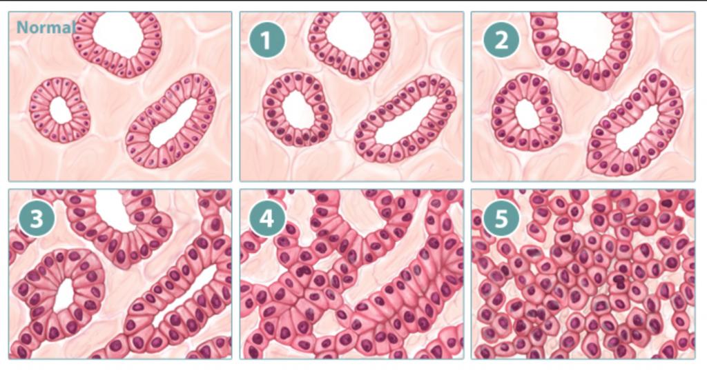 Гистопатологическая степень злокачественности опухоли простаты по шкале Глиссона