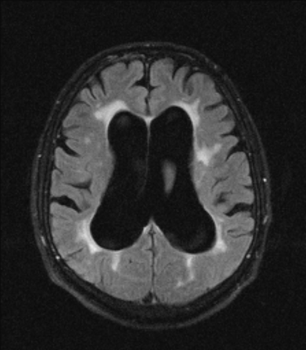 Нормотензивная гидроцефалия головного мозга (синдром Хакима-Адамса): причины, симптомы и лечение