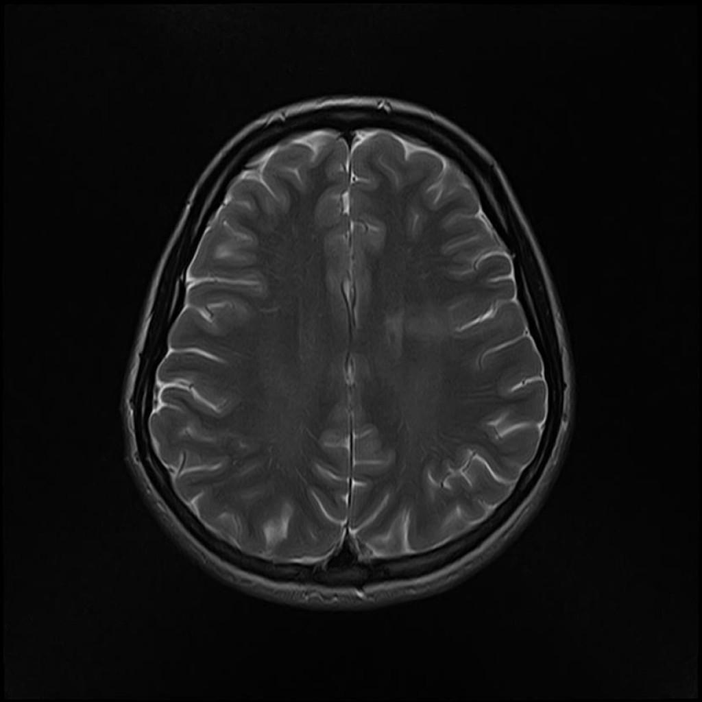 Фокальная кортикальная дисплазия (Focal cortical dysplasia)