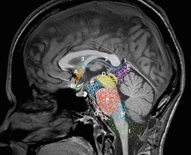 Сагиттальная анатомия и цистерны головного мозга