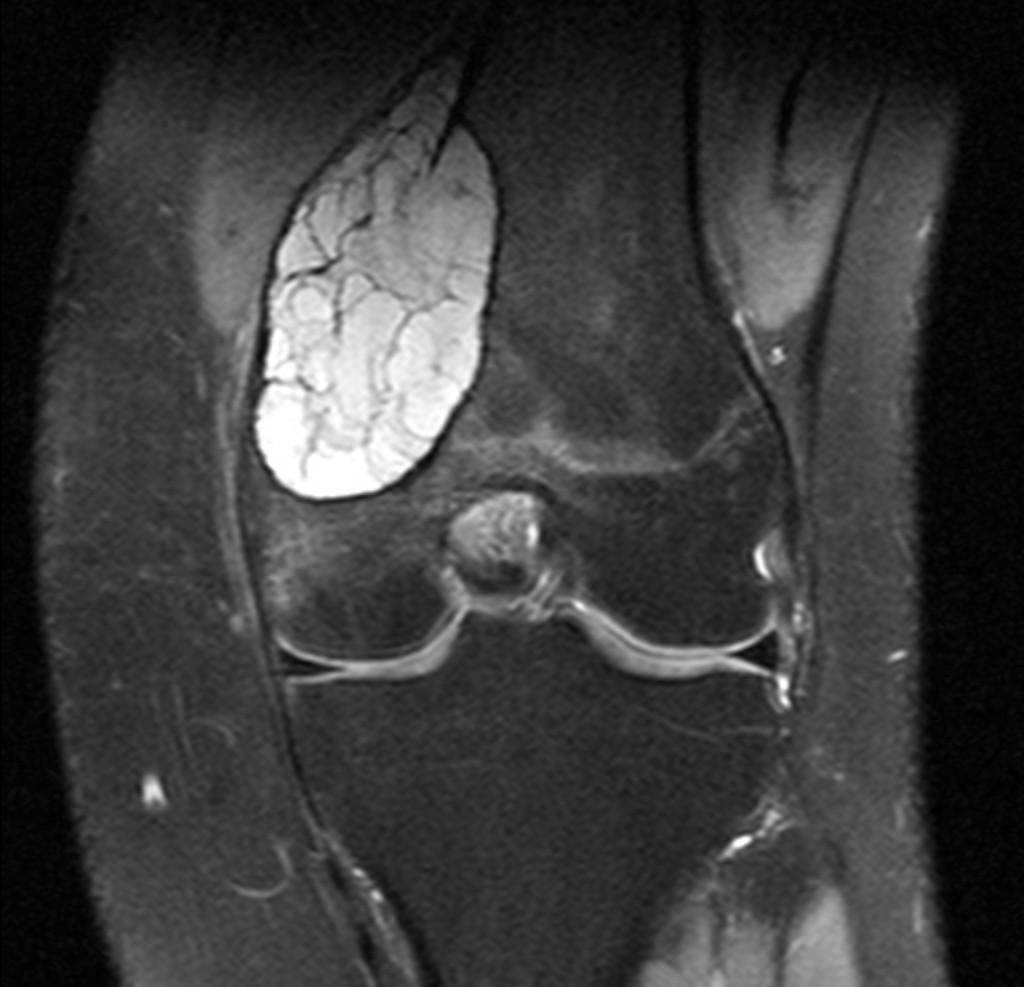 Аневризмальная костная киста (Aneurysmal bone cyst)