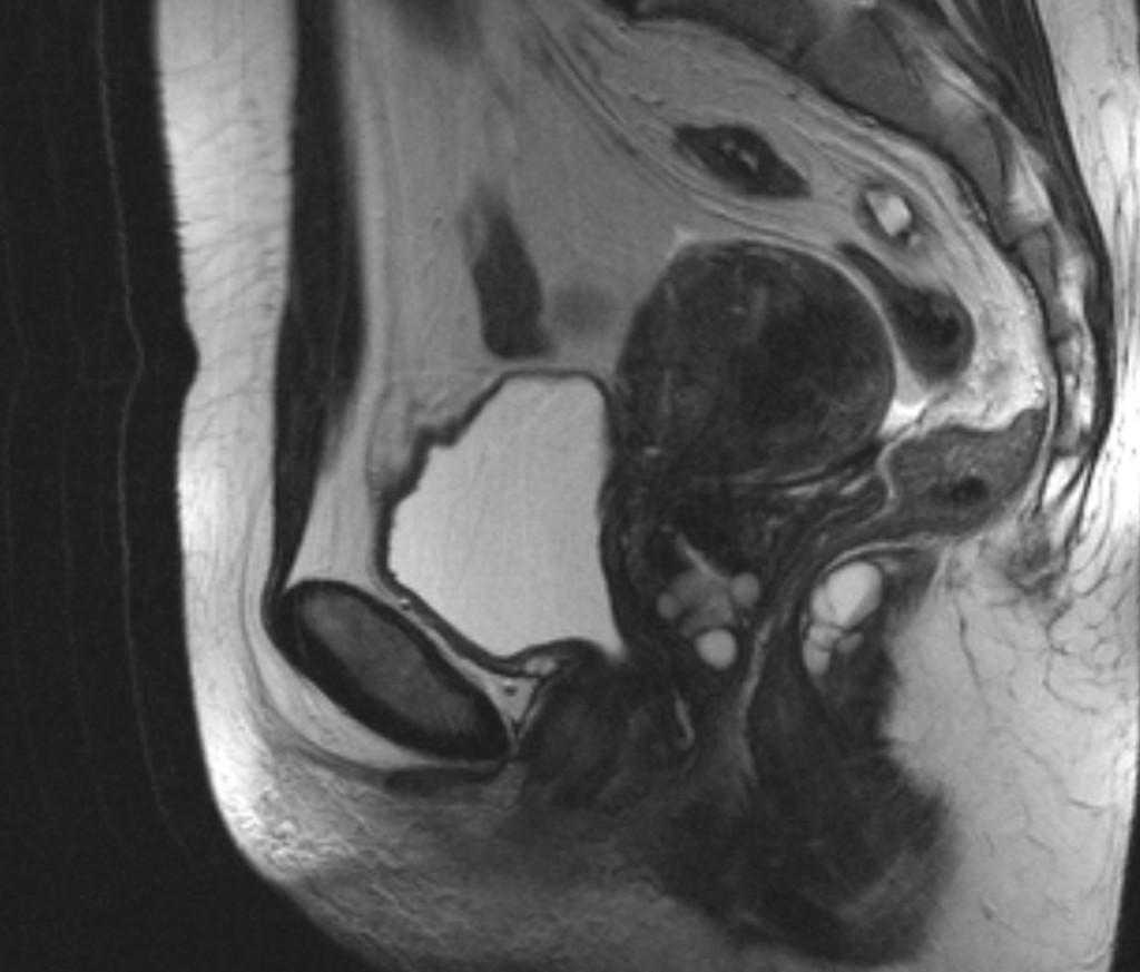 Ретроректальная кистозная гамартома (Retrorectal cystic hamartoma / Tailgut duplication cyst)