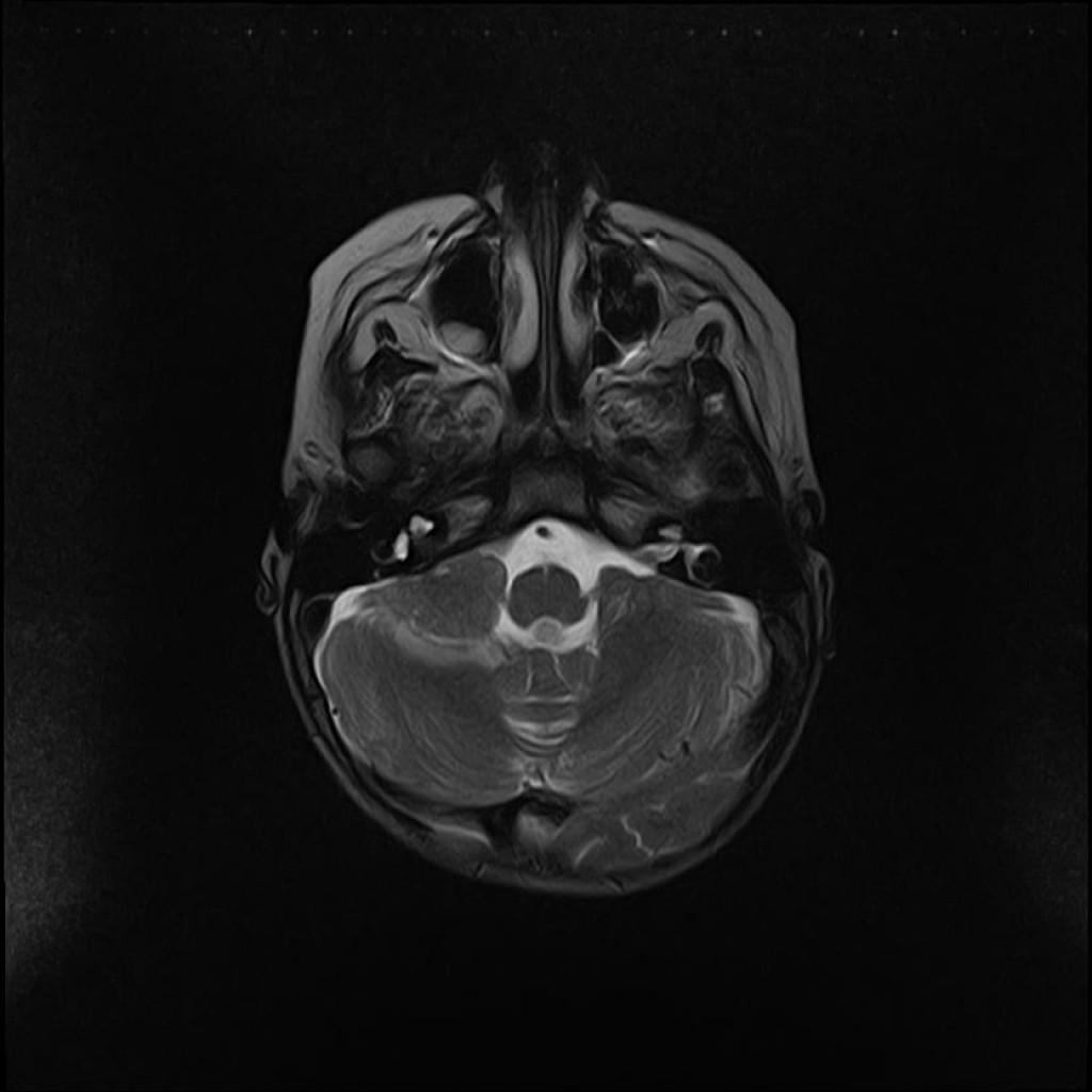 Менингиома мостомозжечкового угла, внутреннего слухового прохода (Meningioma CPA-IAC)