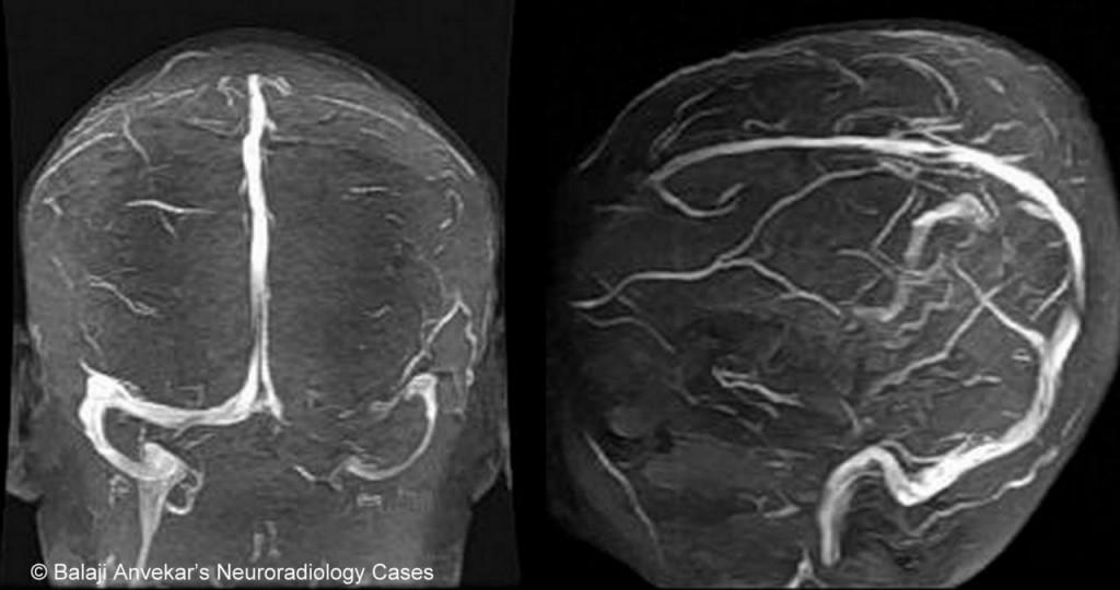 Гипоплазия (аплазия) поперечного (сигмовидного) синуса (иллюстрации)
