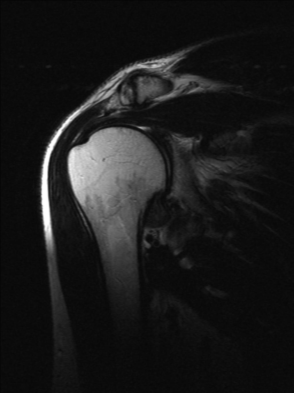 Адгезивный капсулит плечевого сустава (Adhesive capsulitis of the shoulder)