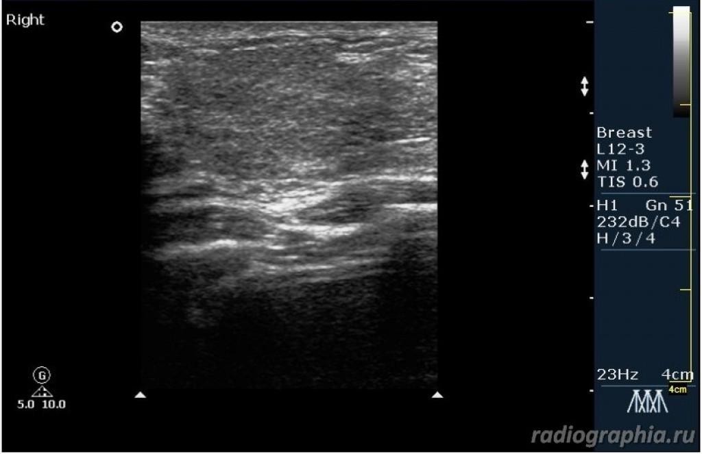 Внутригрудной лимфатический узел BIRADS 2