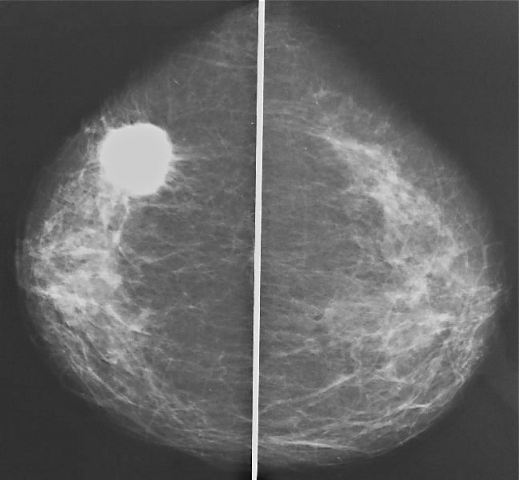 Рак молочной железы Bi-RADS-5