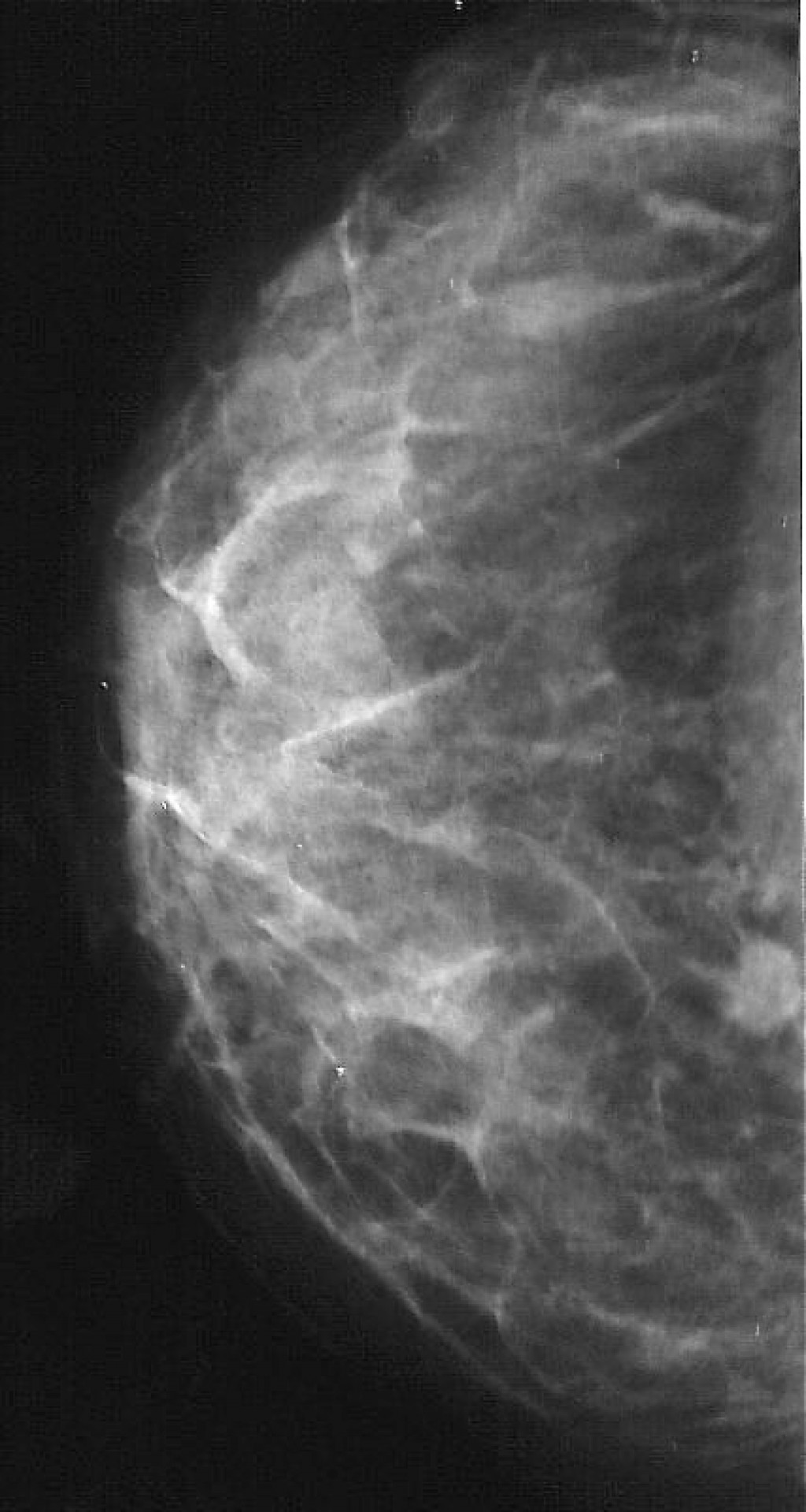 Рак молочной железы BI RADS 4