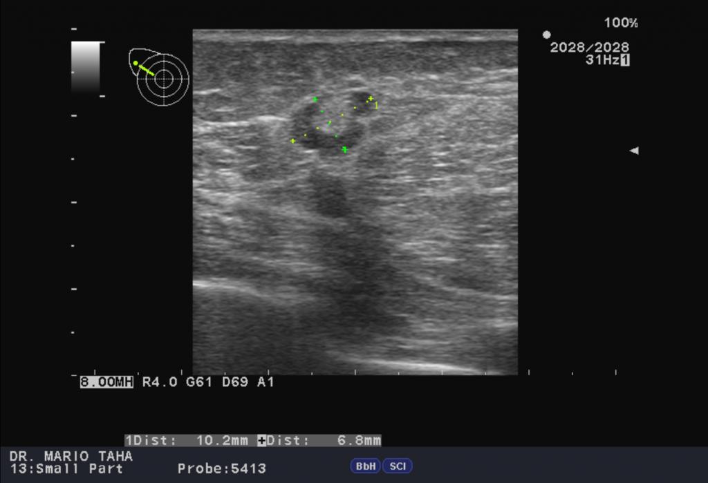 Интрамаммарный лимфатический узел BIRADS 2