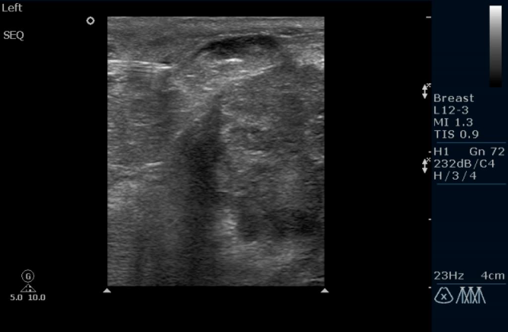 Биопсия молочной железы под УЗИ контролям (иллюстрации)