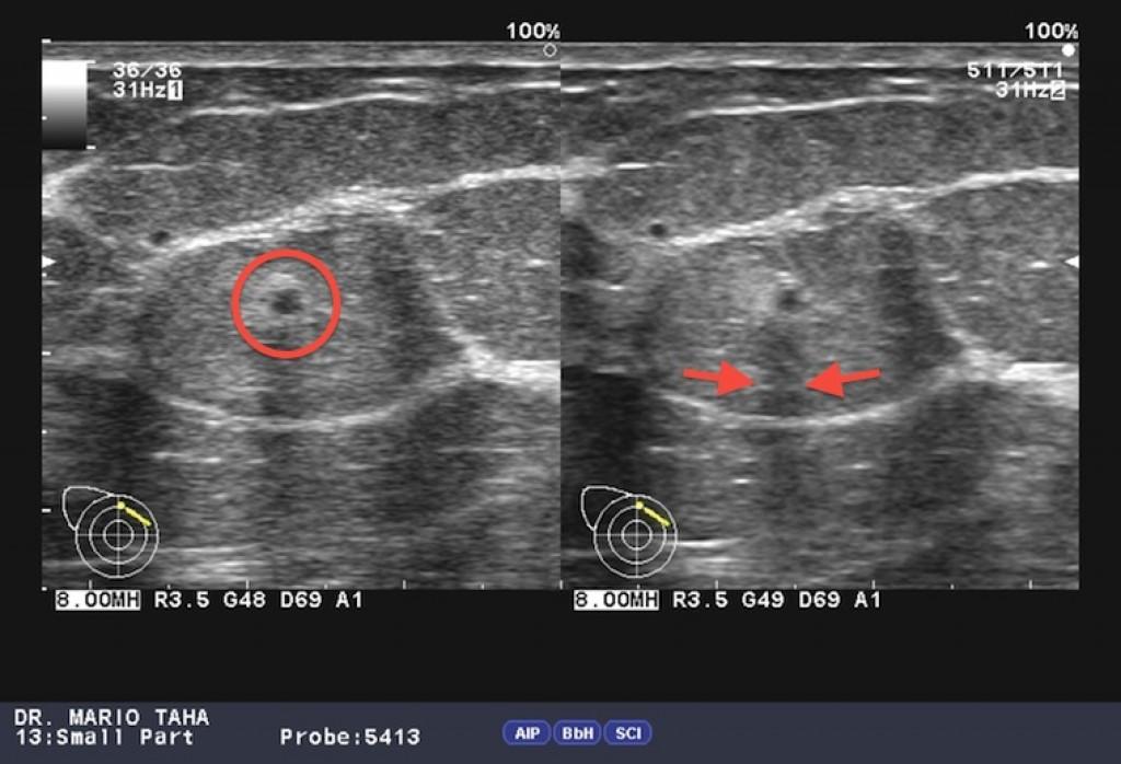 Рак молочной железы BIRADS 4B