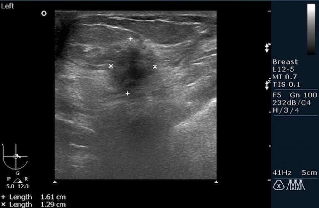 Рак молочной железы BIRADS 5
