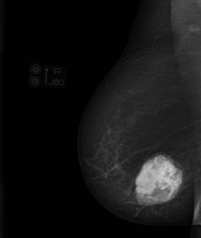 Остеосаркома молочной железы