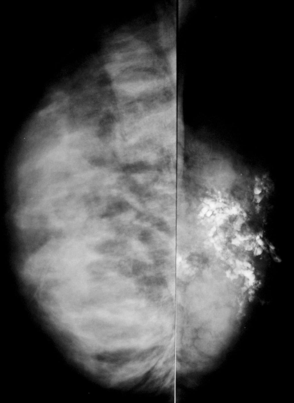 Ювенильный папилломатоз (Swiss cheese disease)