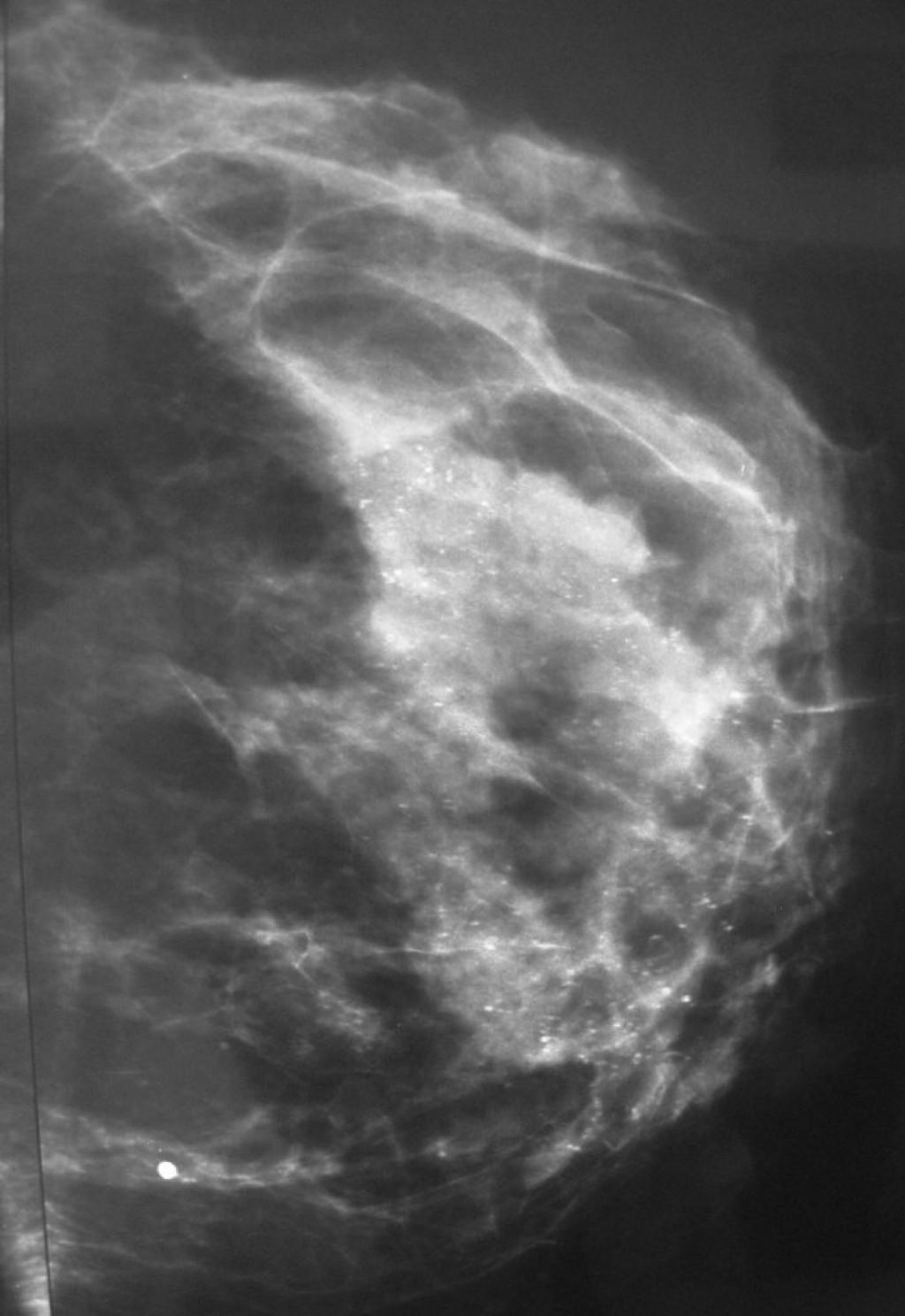 Протоковая аденокарцинома in situ