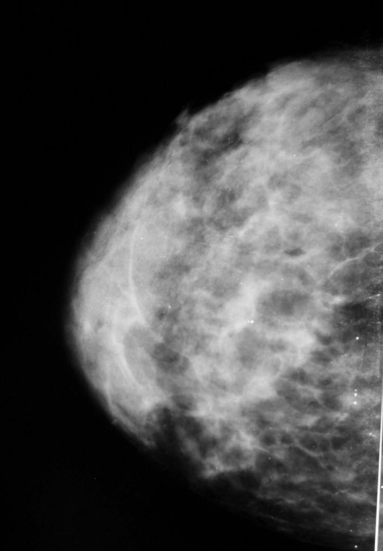 Инвазивная протоковая карцинома (invasive ductal carcinoma)