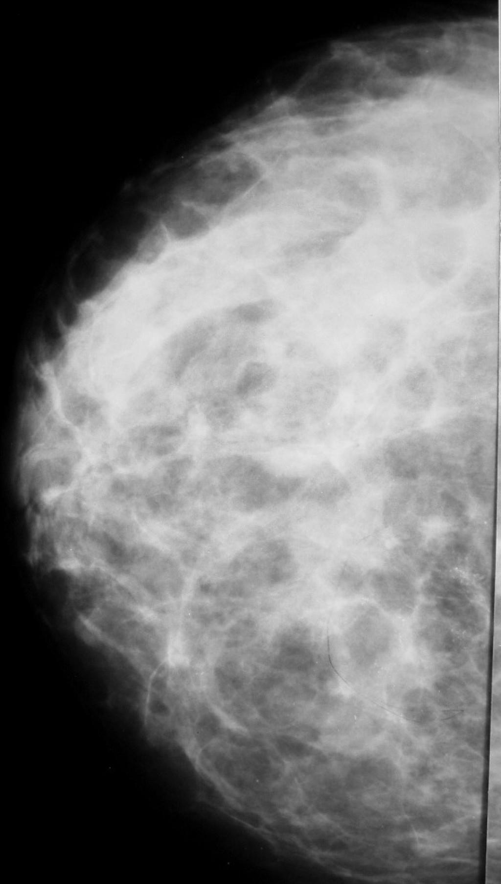Протоковая карцинома in situ (ПКИС)