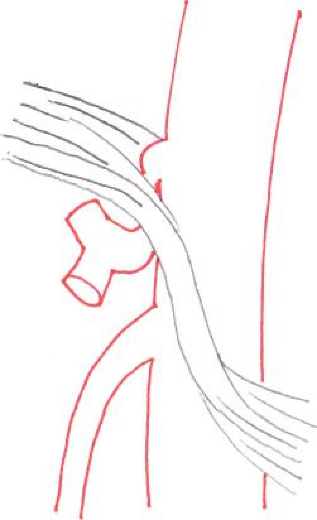 Данбара синдром (иллюстрации)
