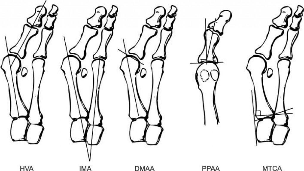 Вальгусная деформация первого пальца стопы (Hallux Valgus, иллюстрация)
