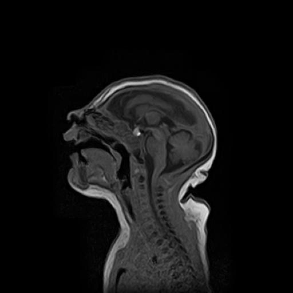 Микроцефалия (Microcephaly)