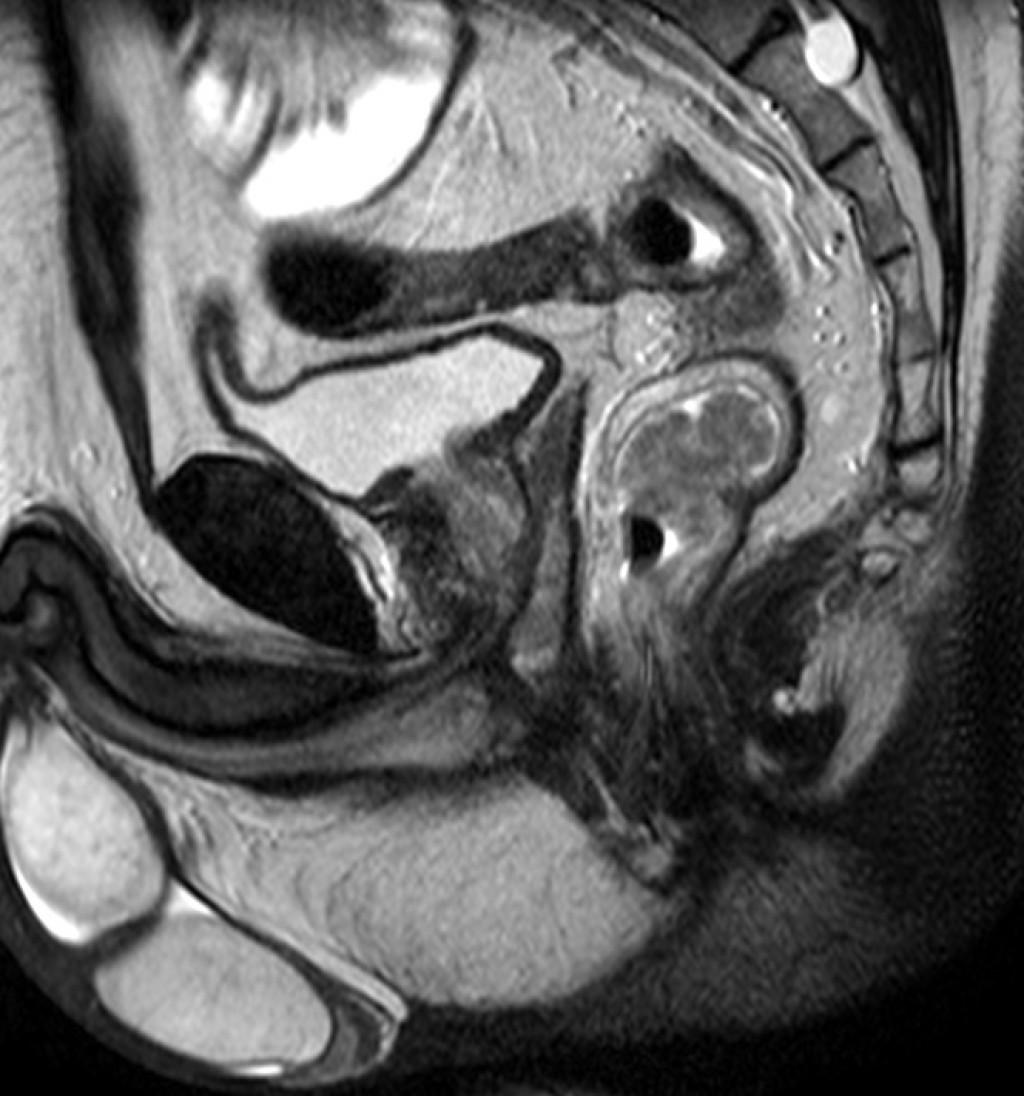Экзофитный рак прямой кишки с региональной аденопатией