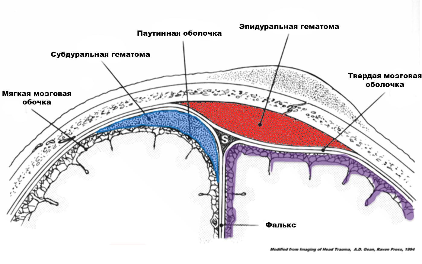 Локализация внутричерепных гематом