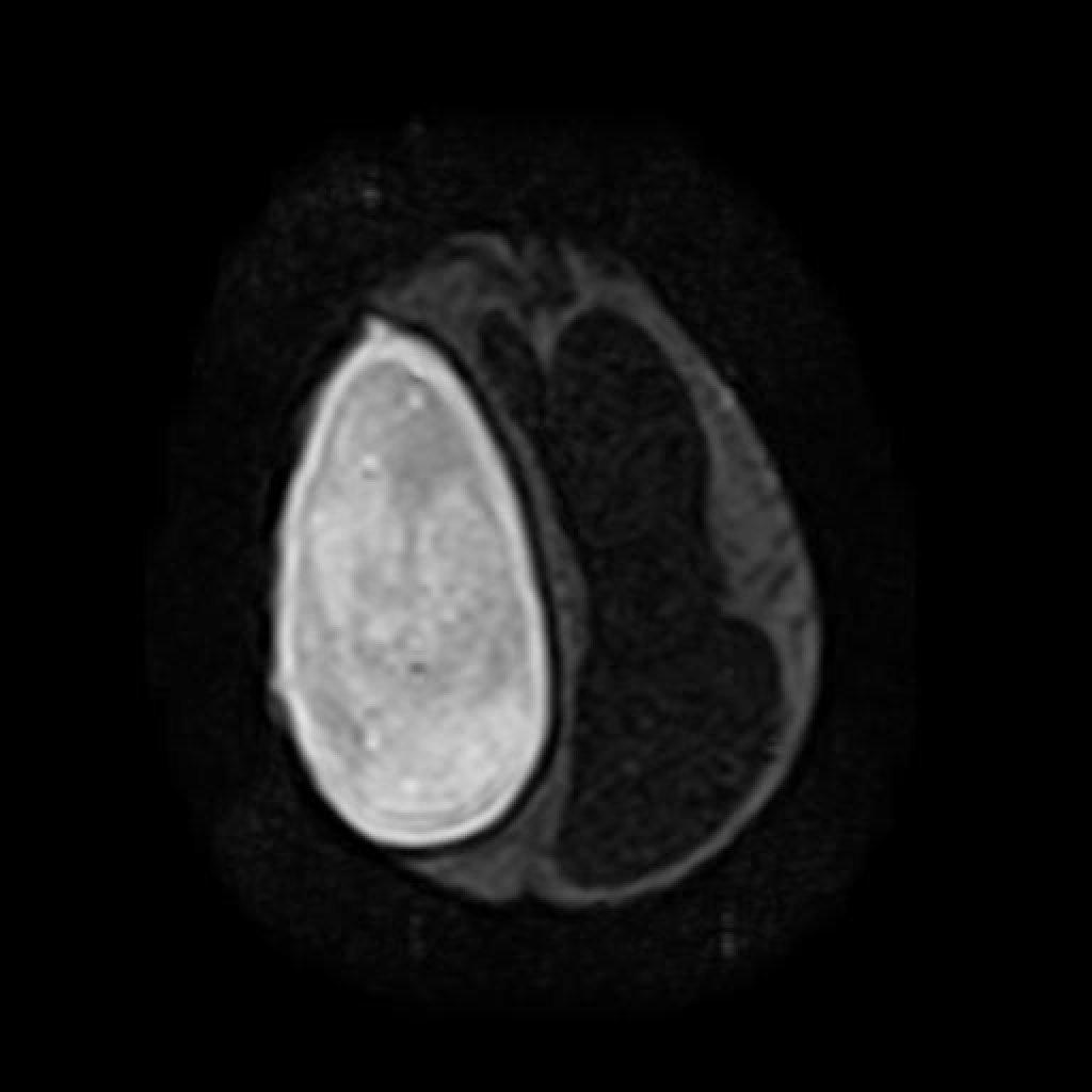 Абсцессы головного мозга (Abscess Brain) и Болезнь Краббе (Krabbe Disease (Globoid Cell Leukodystrophy))