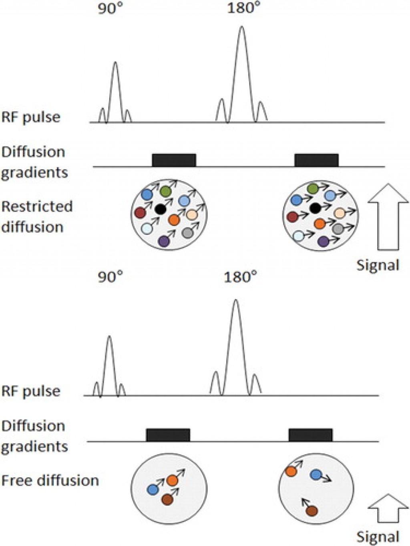 Принципы и использование дифузионно-взвешеного сканированния в выявлении рака, стадирования и контроля лечения (иллюстрации)
