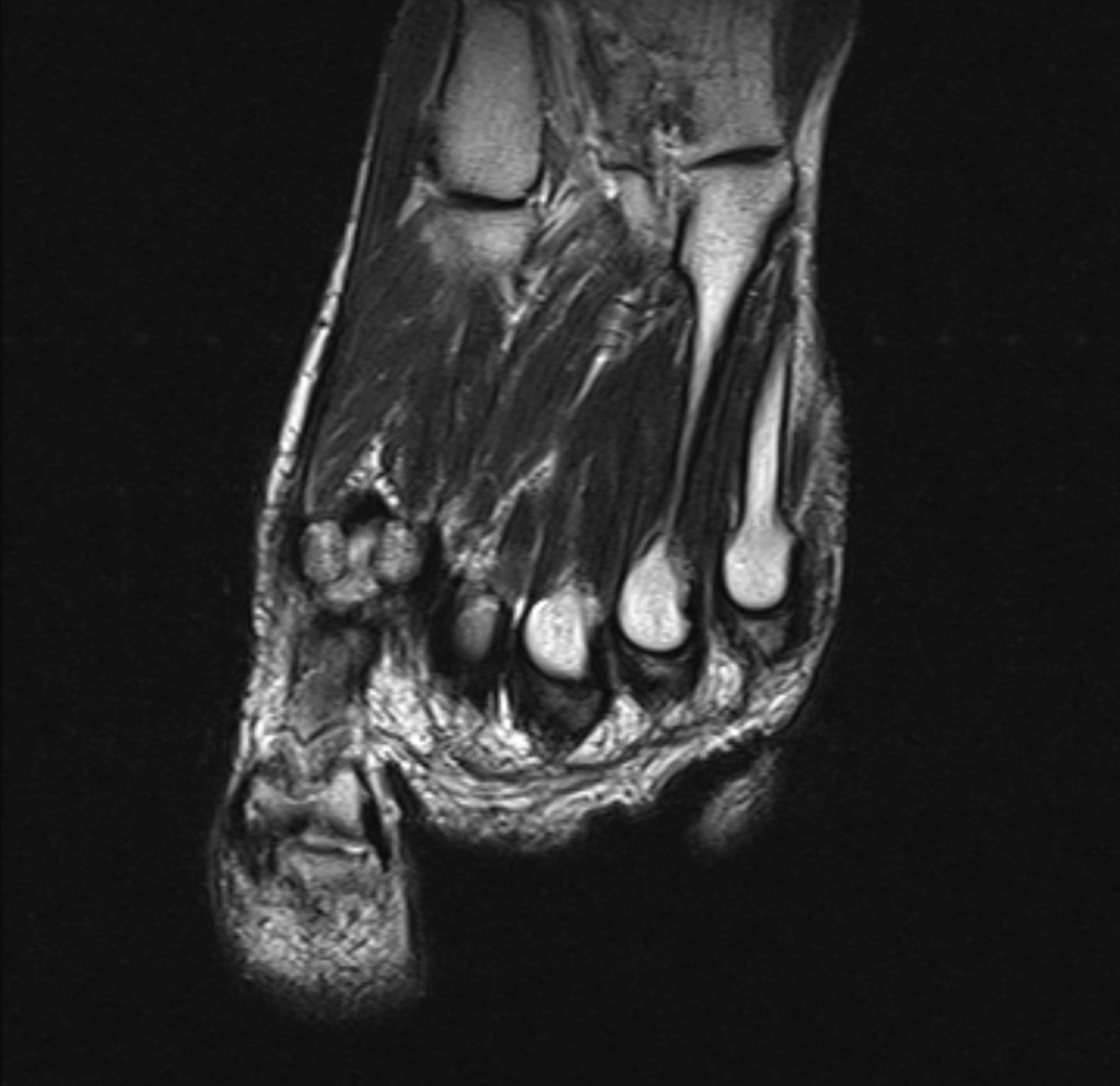Гигантоклеточная опухоль сухожильного влагалища (Giant cell tumour of the tendon sheath)