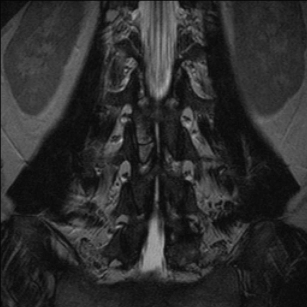 Косточка Оппенгеймера (Oppenheimer ossicle)