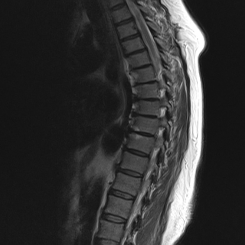 Спинальная дуральная артериовенозная фистула (Spinal dural arteriovenous fistula)