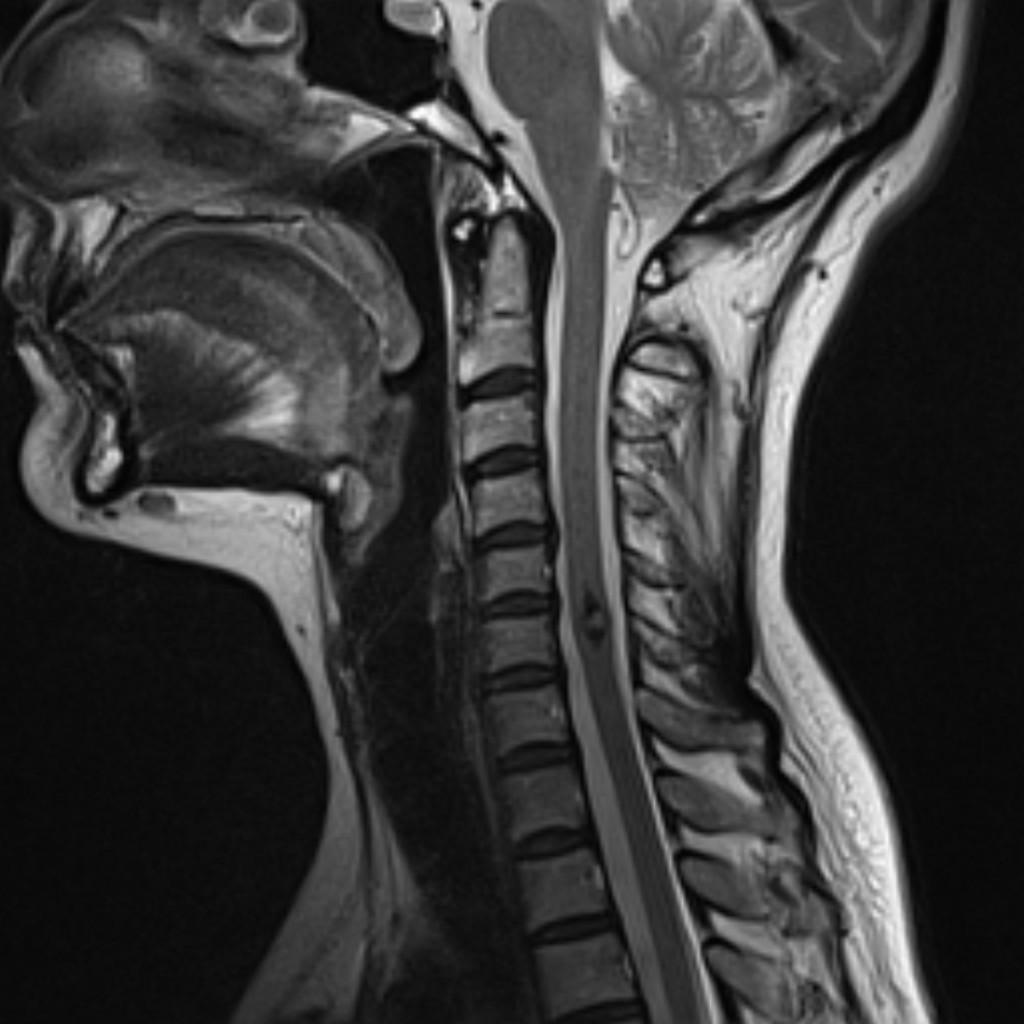 Кавернозная венозная мальформация спинного мозга (Spinal cord cavernous malformation)