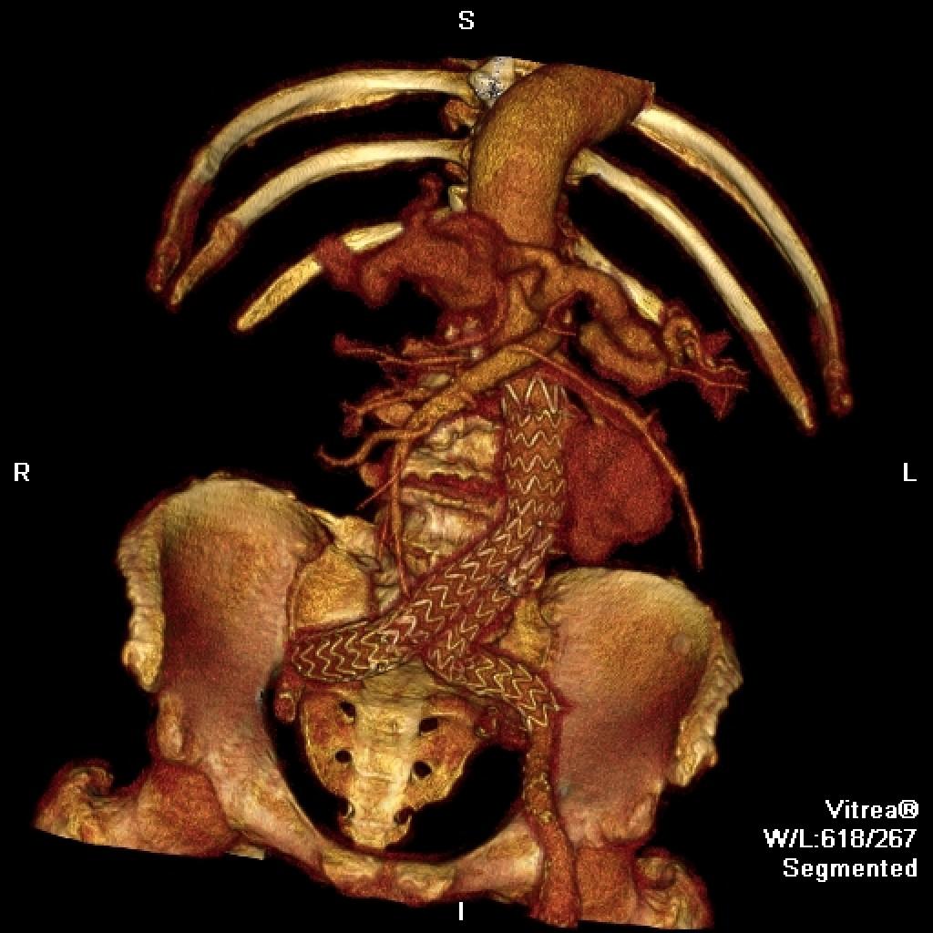 Аневризма брюшной аорты после стентирования. Протечки стент-графта.