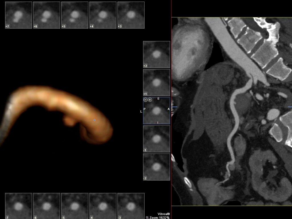 Псевдоаневризма селезеночной артерии (последствия острого панкреатита).