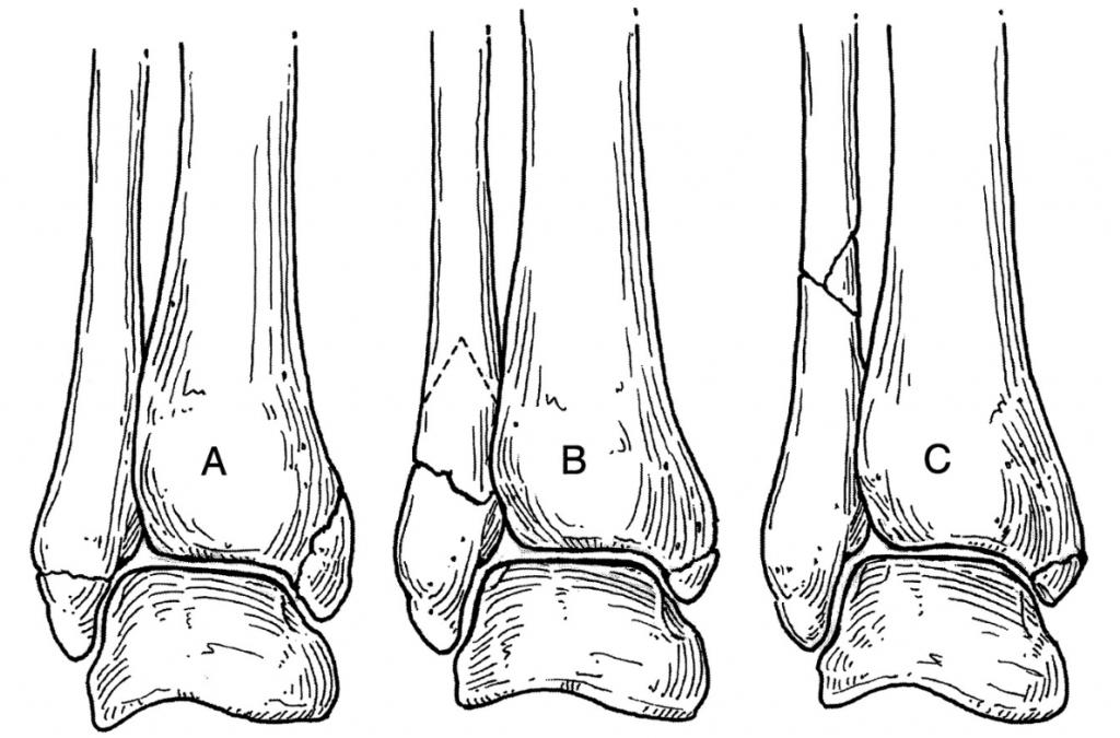 Перелом лодыжки (классификация Weber)