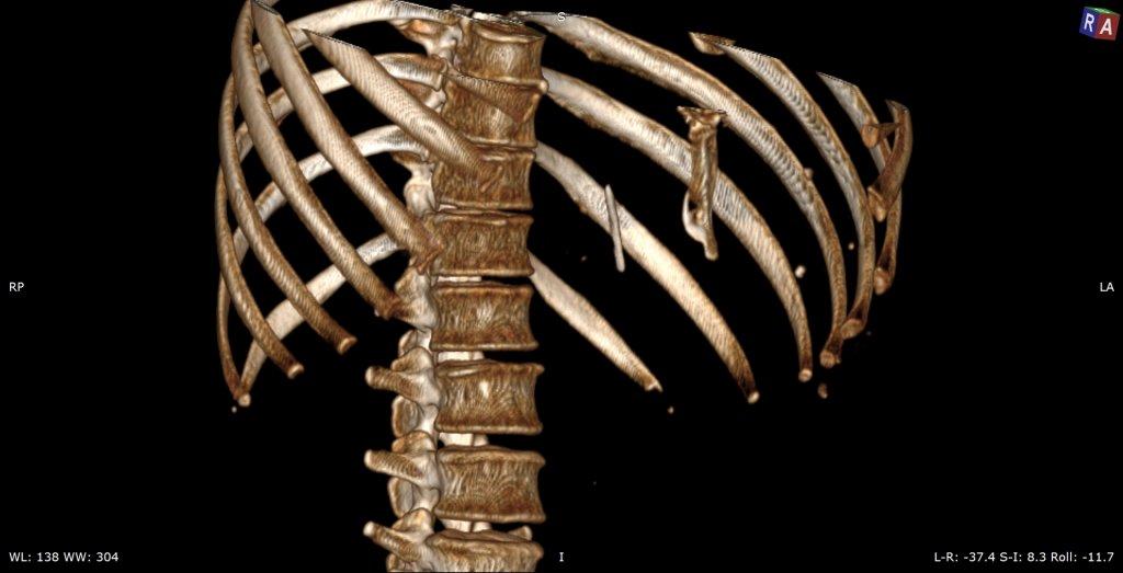 Инородное тело брюшной полости (Игла в левой доле печени)
