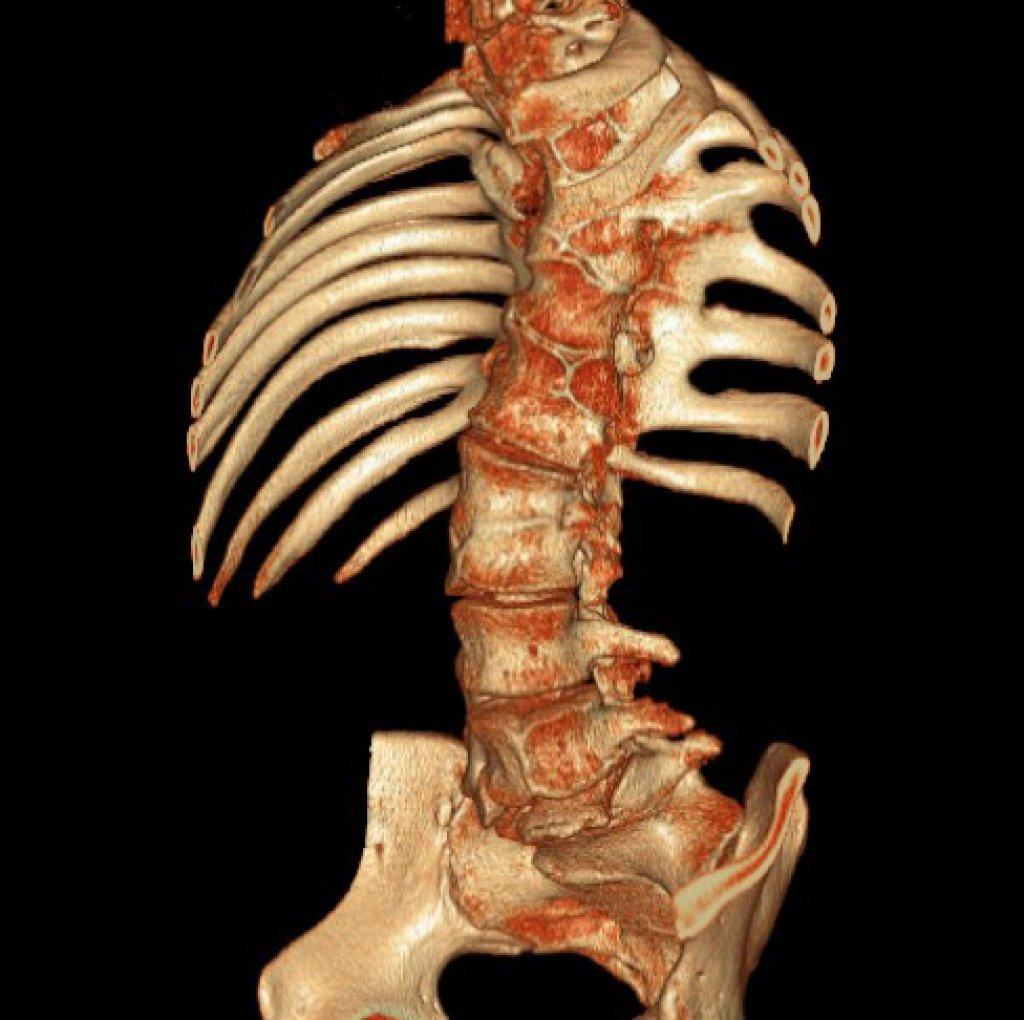 Спондилоторакальная дисплазия (синдром Ярхо - Левина)