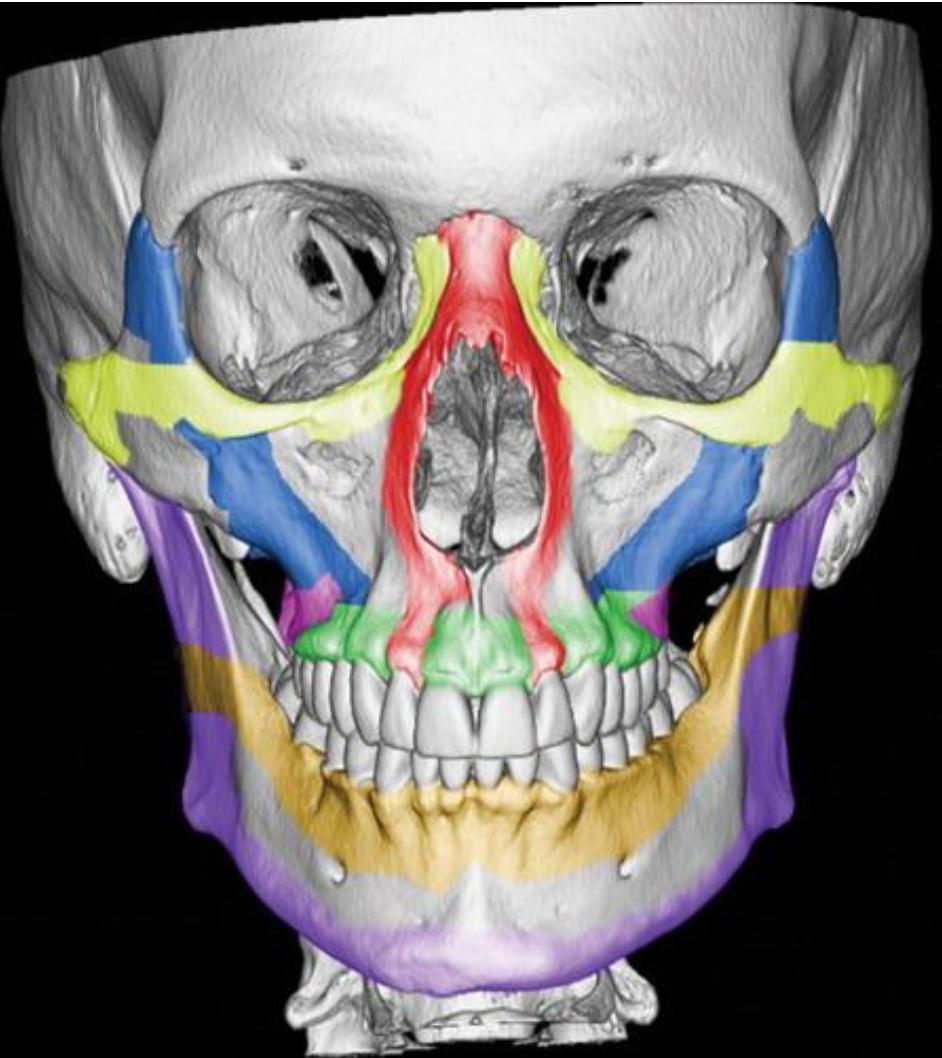 Система лицевых контрфорсов